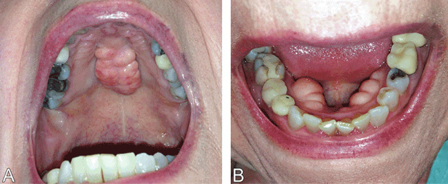 Bony Bumps in the Mouth – Consult QD