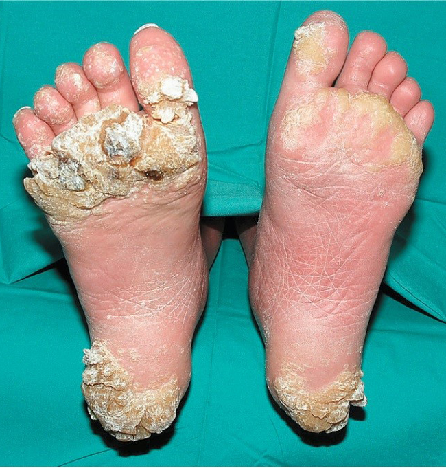 Hpv plantar warts on feet